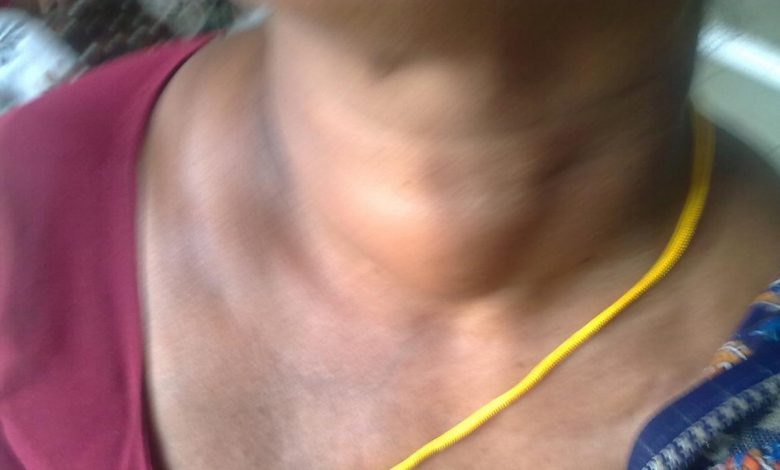 Symptoms of hypothyroidism come from this disorder that no one thinks about